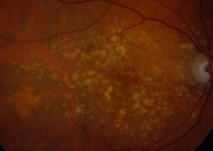 An image depicting Age-Related Macular Degeneration