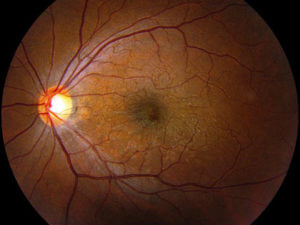A picture depicting Macular Pucker